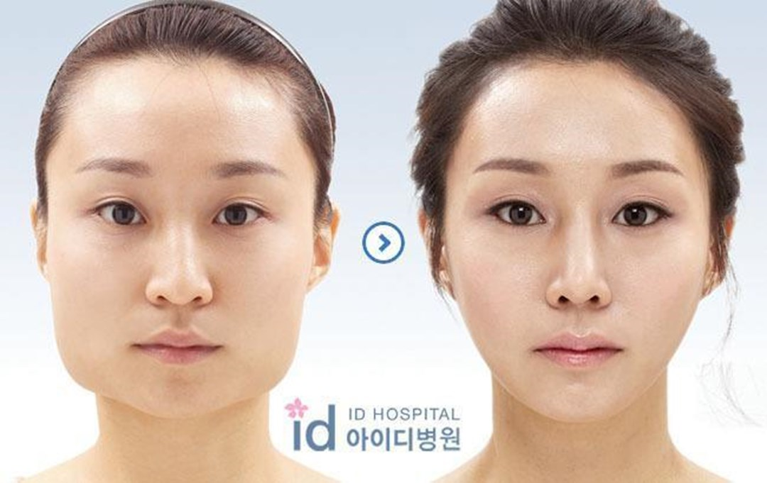 South Korea: the jaw surgery, new fashion: Mynetsale