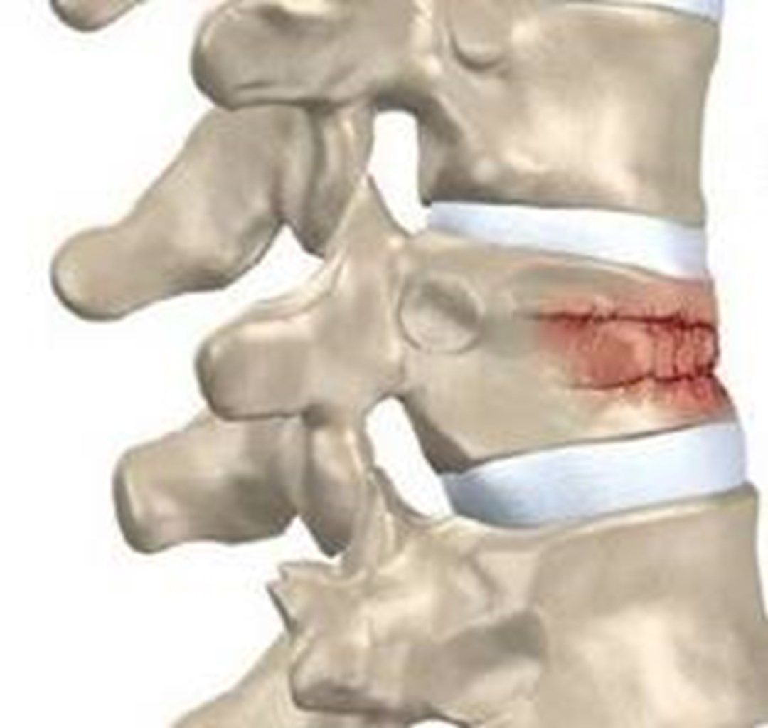 spinal fracture A compression fracture is a common problem in osteoporosis learn about causes, how it is treated and how you can prevent future broken vertebrae.